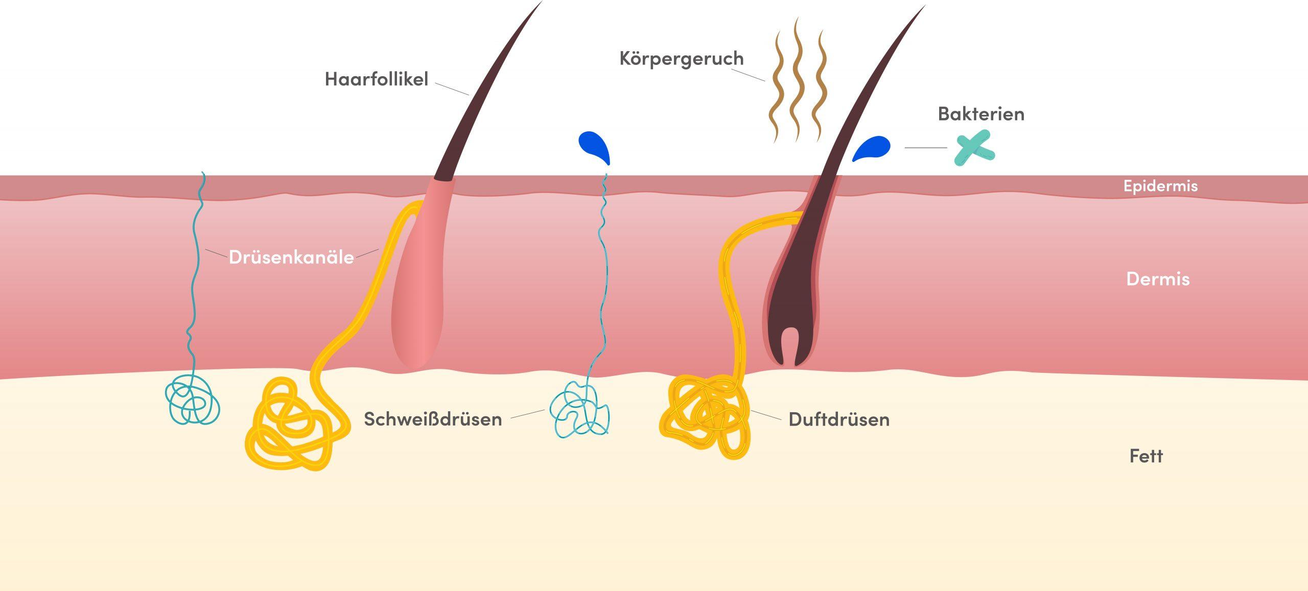 Young Aesthetics miraDry Anti-Schweiß-Behandlung Hannover Hyperhidrose Achselschweiß Schritt 1