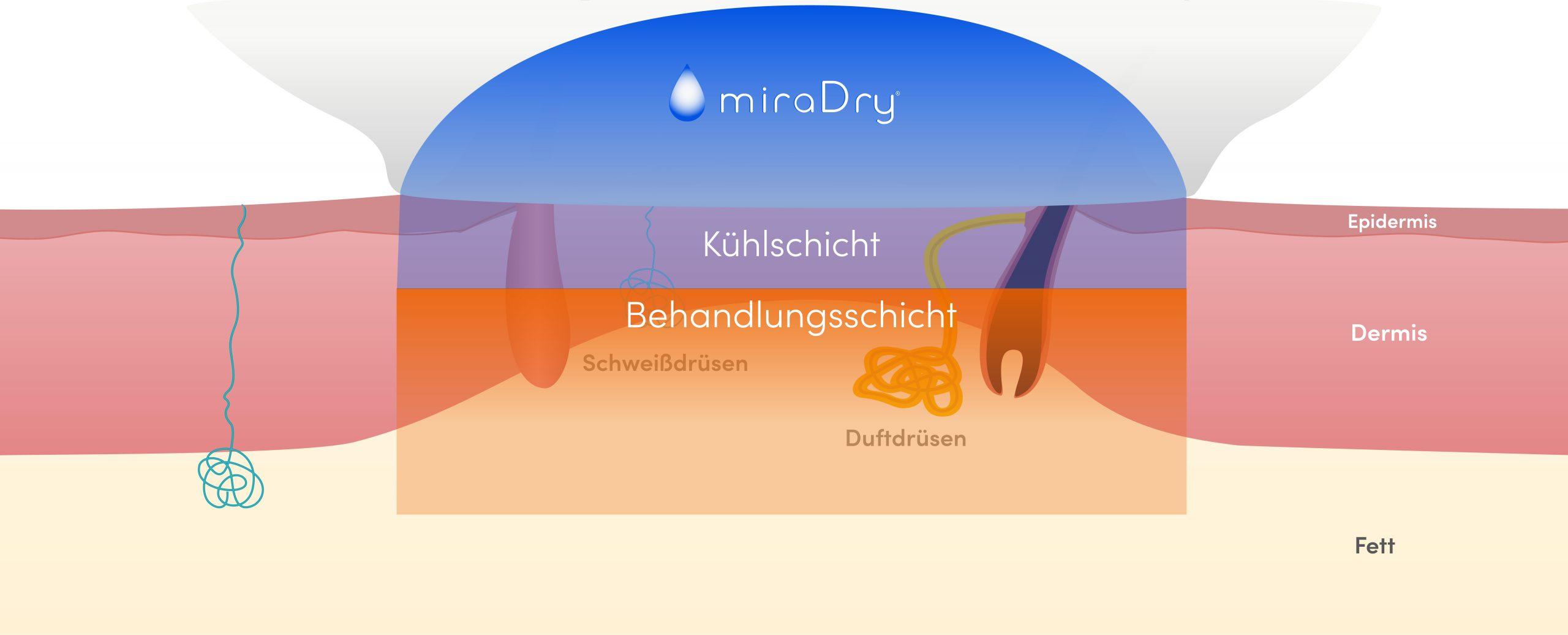 Young Aesthetics miraDry Anti-Schweiß-Behandlung Hannover Hyperhidrose Achselschweiß Schritt 3