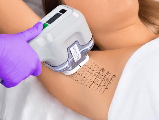 Young Aesthetics miraDry Anti-Schweiß-Behandlung Hannover Hyperhidrose Achselschweiß